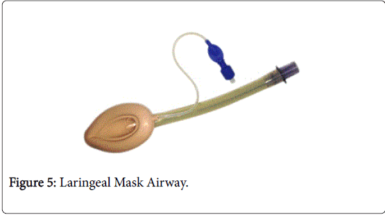 gastrointestinal-digestive-system-Laringeal-Mask
