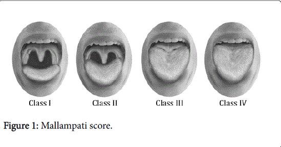 gastrointestinal-digestive-system-Mallampati-score