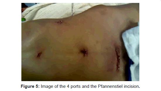 gastrointestinal-digestive-system-Pfannenstiel-incision