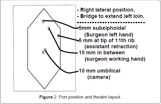 gastrointestinal-digestive-system-Port-position