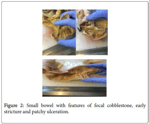 gastrointestinal-digestive-system-Small-bowel