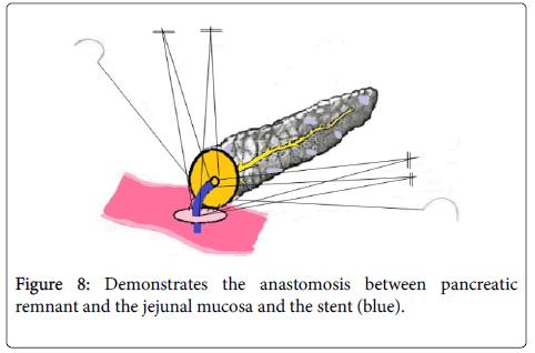 gastrointestinal-digestive-system-anastomosis