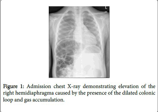 gastrointestinal-digestive-system-gas-accumulation