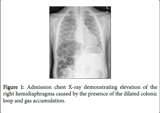 Chilaiditi Syndrome as A Cause of Respiratory Distress: A