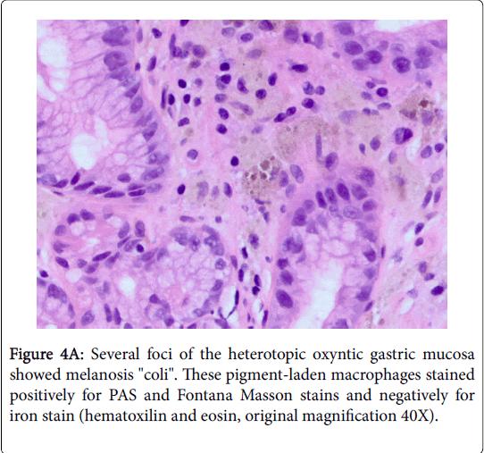 gastrointestinal-digestive-system-heterotopic