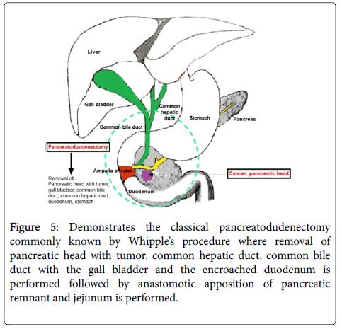 gastrointestinal-digestive-system-pancreatodudenectomy