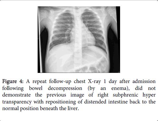 gastrointestinal-digestive-system-position-beneath