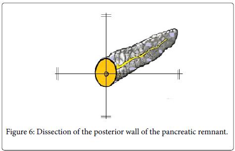gastrointestinal-digestive-system-posterior-wall