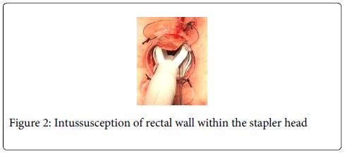gastrointestinal-digestive-system-stapler-head