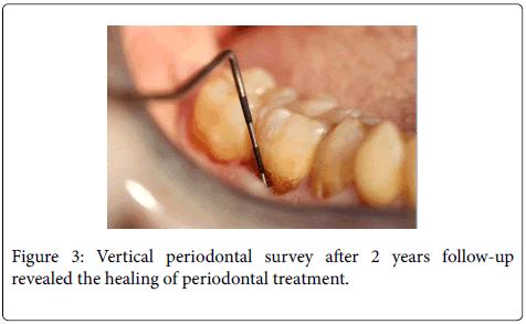general-practice-Vertical-periodontal-survey