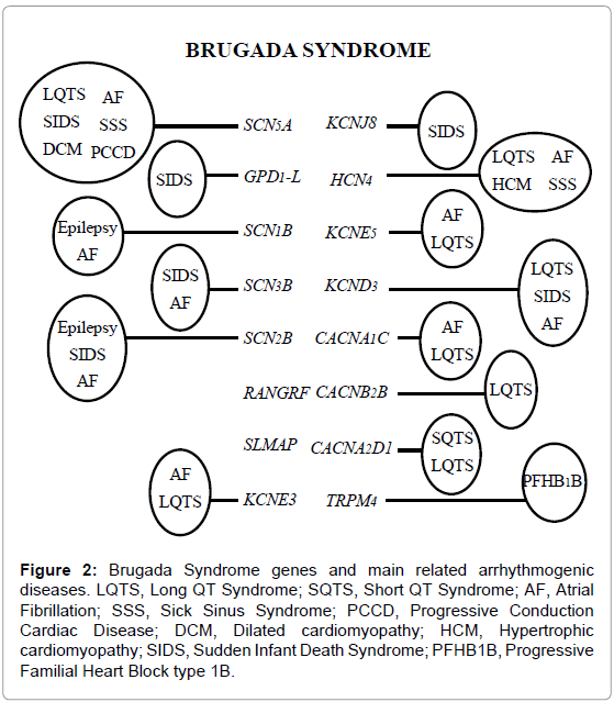genetic-syndromes-gene-therapy-Brugada-Syndrome