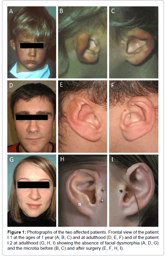 genetic-syndromes-gene-therapy-Frontal-view