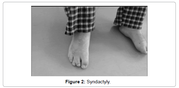 genetic-syndromes-gene-therapy-Syndactyly