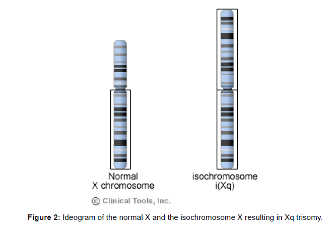genetic-syndromes-gene-therapy-isochromosome-resulting
