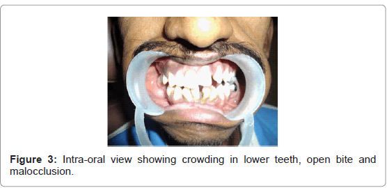 genetic-syndromes-gene-therapy-lower-teeth
