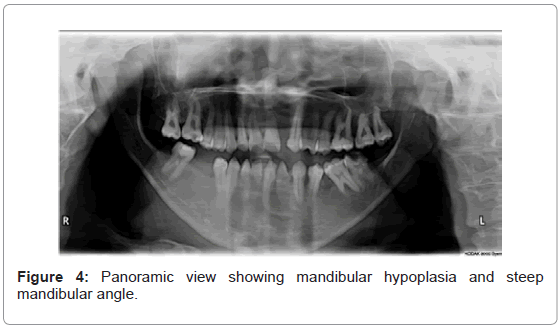 genetic-syndromes-gene-therapy-mandibular-angle