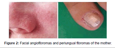 genetic-syndromes-gene-therapy-periungual-fibromas
