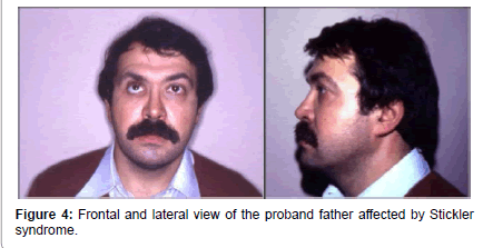genetic-syndromes-gene-therapy-proband-father