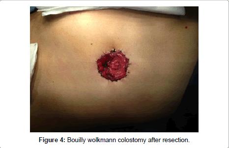 gynecology-Bouilly-wolkmann