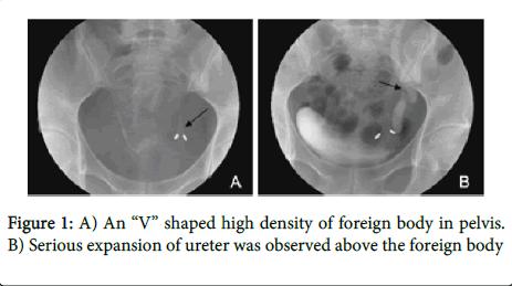 gynecology-high-density