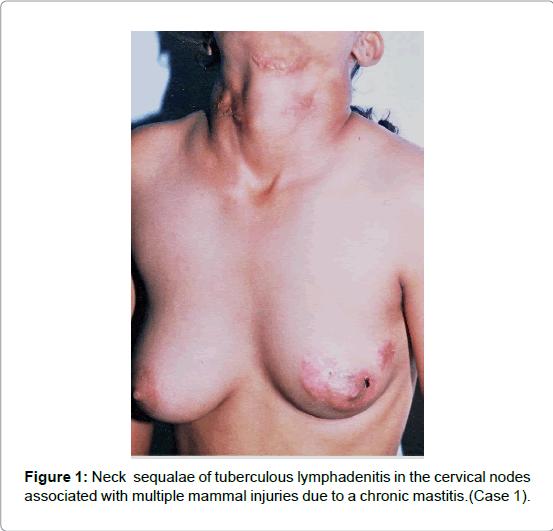 gynecology-mammal-injuries
