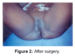 gynecology-obstetrics-After-surgery