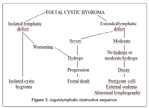 Cystic Hygroma of the Neck: Prognostic Factors and Therapeutic ...