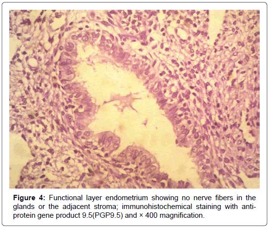 gynecology-obstetrics-endometrium-showing