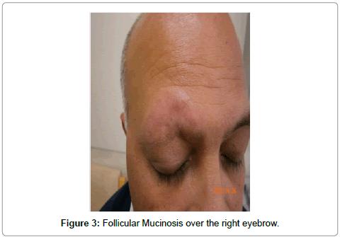hair-therapy-transplantation-Follicular-Mucinosis