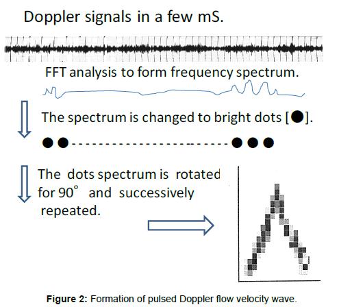 health-Medical-Informatics-Doppler-flow-velocity
