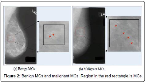 health-medical-informatics-Benign-MCs-malignant