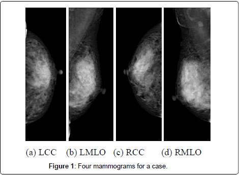 health-medical-informatics-Four-mammograms
