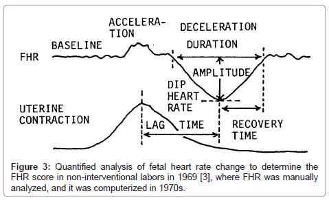 health-medical-informatics-Quantified-analysis