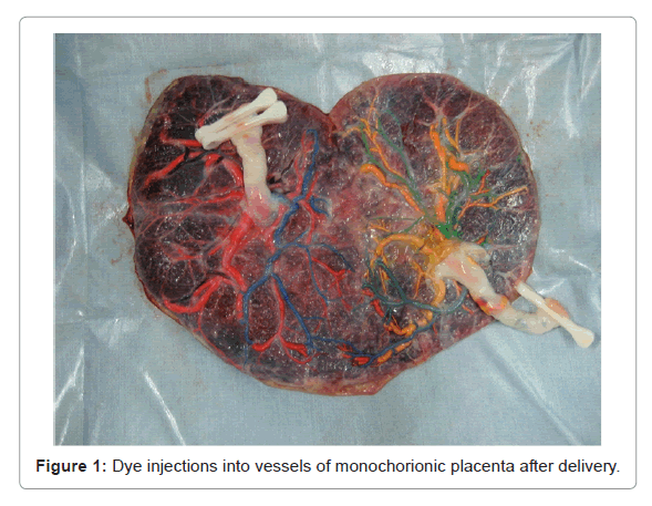 health-medical-informatics-monochorionic-placenta
