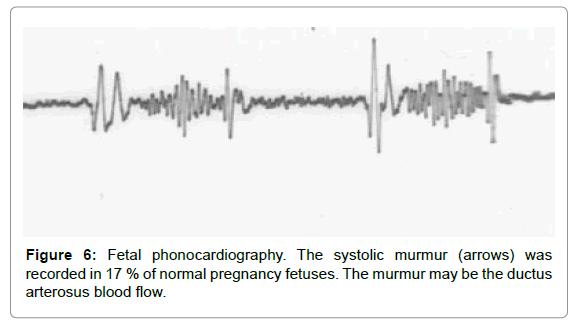 health-medical-informatics-systolic-murmur