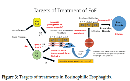 eosinophilic esophagitis a comprehensive review omics international rh omicsonline org diagram of esophagus and trachea diagram of esophagus and throat