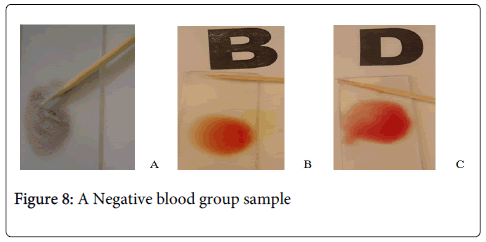hereditary-genetics-Negative-blood