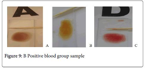 hereditary-genetics-Negative-sample