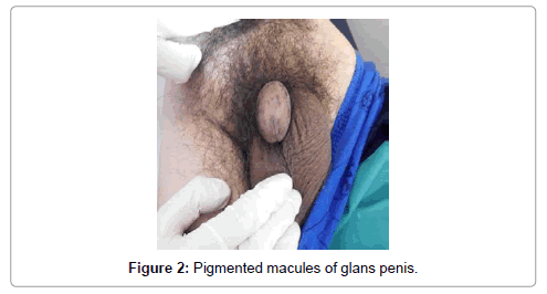 hereditary-genetics-Pigmented-macules