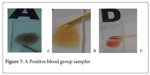 hereditary-genetics-Positive-blood