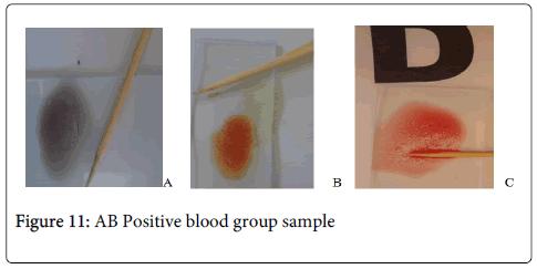 hereditary-genetics-group-Positive