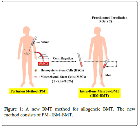 immunome-research-BMT-method-allogeneic
