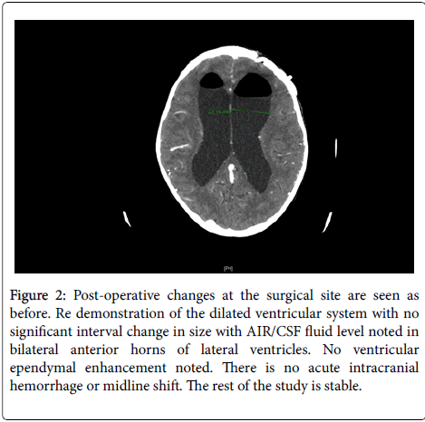 infectious-diseases-and-therapy-dilated-ventricular-system