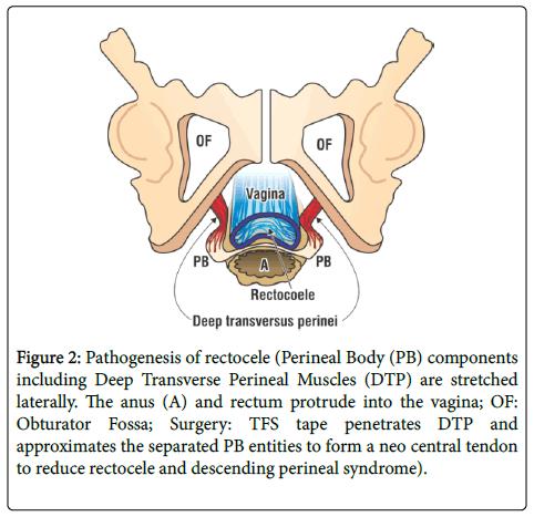inflammatory-bowel-diseases-central-tendon