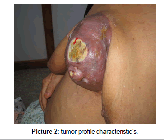 integrative-oncology-tumor-profile