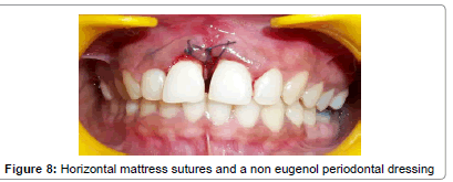 interdisciplinary-eugenol-periodontal
