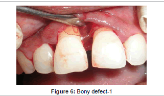 interdisciplinary-medicine-Bony-defect