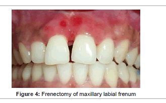 interdisciplinary-medicine-Frenectomy-maxillary