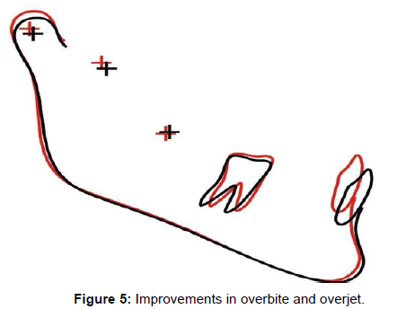interdisciplinary-medicine-Improvements-overbite
