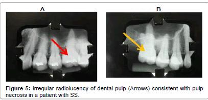 interdisciplinary-medicine-Irregular-radiolucency-dental